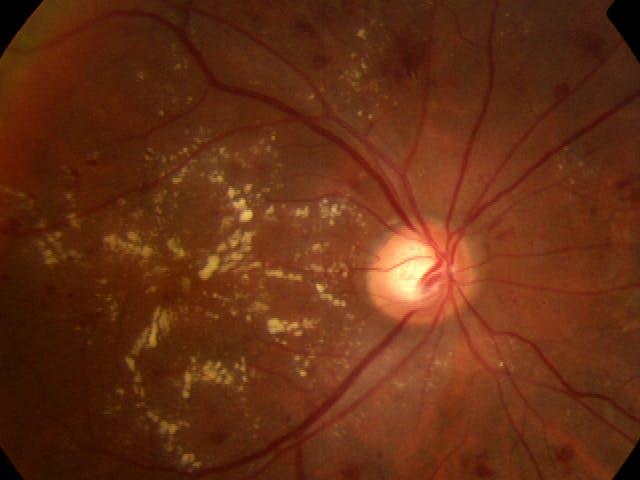 Retinal AI
