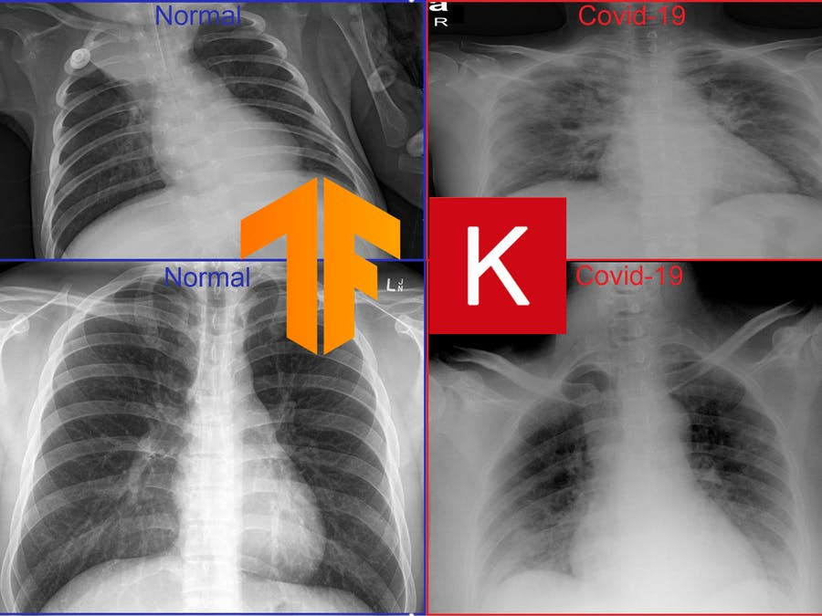 Detecting Covid-19 from x-ray images