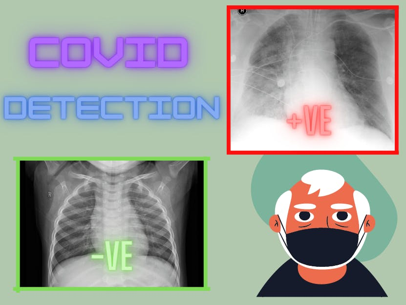COVID-19 Detection from X-Ray Using OpenVino