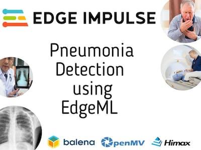 Pneumonia Classification & Detection Using EdgeML