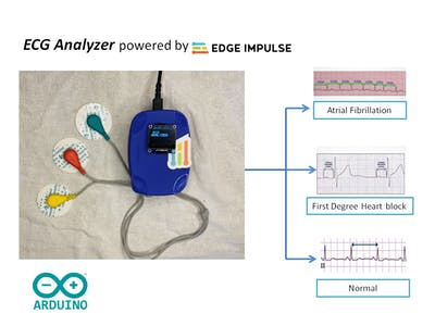 ECG Analyzer Powered by Edge Impulse