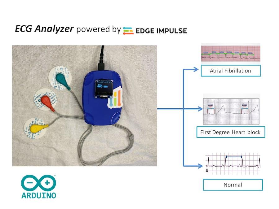 ECG Analyzer Powered by Edge Impulse