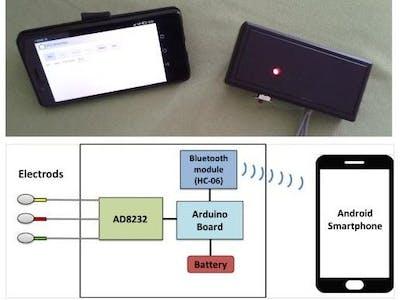 EcgSmartApp - A Low Cost ECG Device