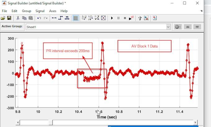 AV Block 1 data in signal builder