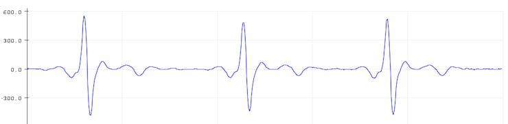 Normal ECG Data
