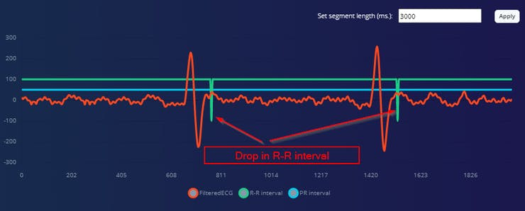 Atrial Fibrillation ECG Data