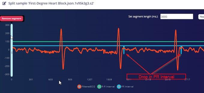 First - Degree Heart Block ECG Data