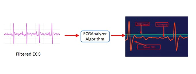 ECGAnalyzer Algorithm