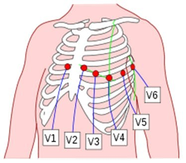 Figure 20: Placement of 6 chest leads.