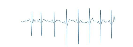Figure 22: Axis-free ECG signal.