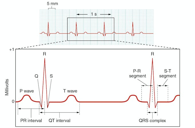 Figure 23: Heart Signal and its waves.