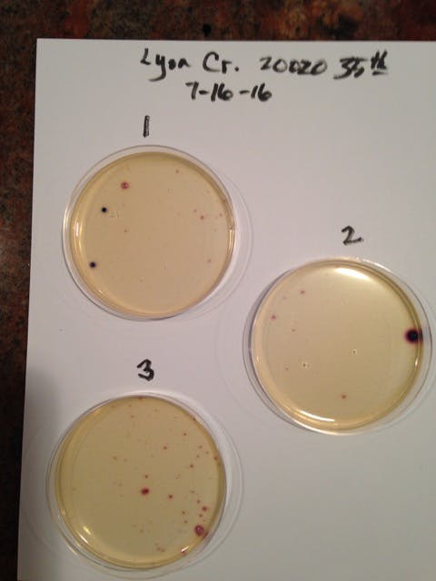 One the samples get cultured in the incubator, it's easy to count the amount of bacteria.