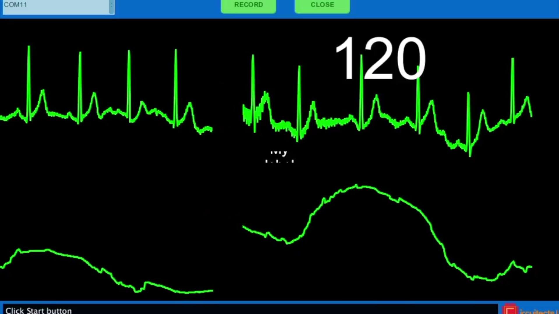 ECG data visualization