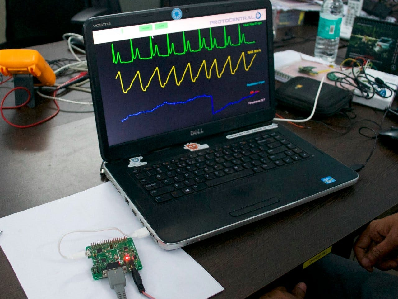 Using HealthyPi with a PC for ECG, Respiration & SpO2