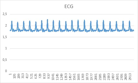 Acquired ECG signal