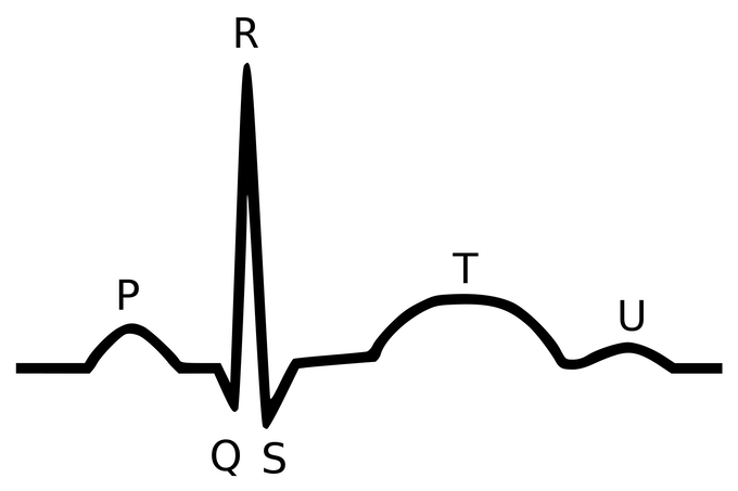 The almighty QRS complex (Image source: Wikimedia Commons)