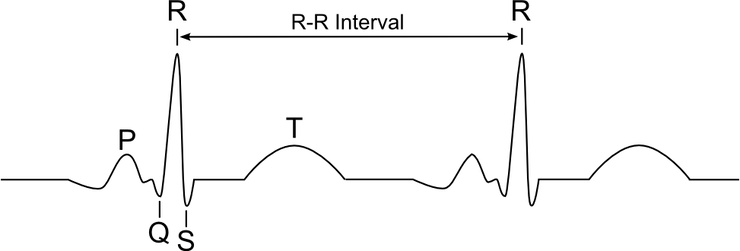 R-R interval (Image Source: Wikimedia Commons)