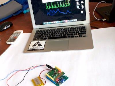 Kalam32 ESP32 Board as a Wireless WiFi/TCP ECG/Resp Monitor