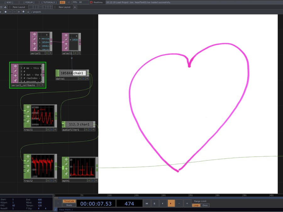 Electrocardiogram Using TouchDesigner & Arduino