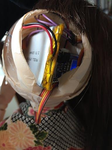 Her brain