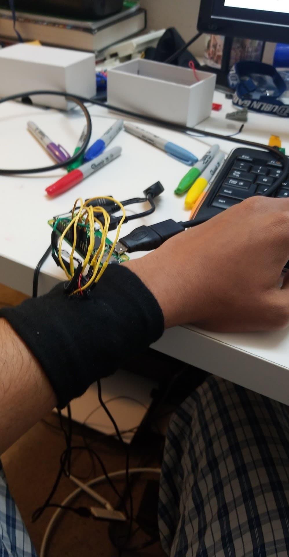 Using a sock as an armband