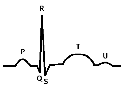 Figure 3 - Schematic representation of a standard ECG feature.