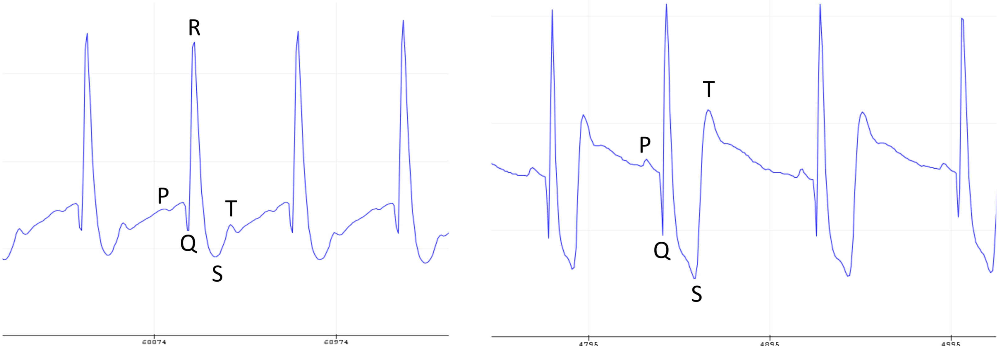 Figure 12 - ECG curves acquired from 2 different people and identified features.