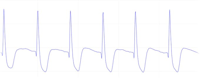 Figure 13 - ECG curve with less distinguishable features, electrodes location is a key factor for the signal quality.