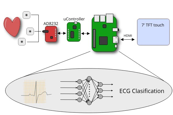 Low-Cost ECG Pathology Detection with Deep Neural Networks - Arduino