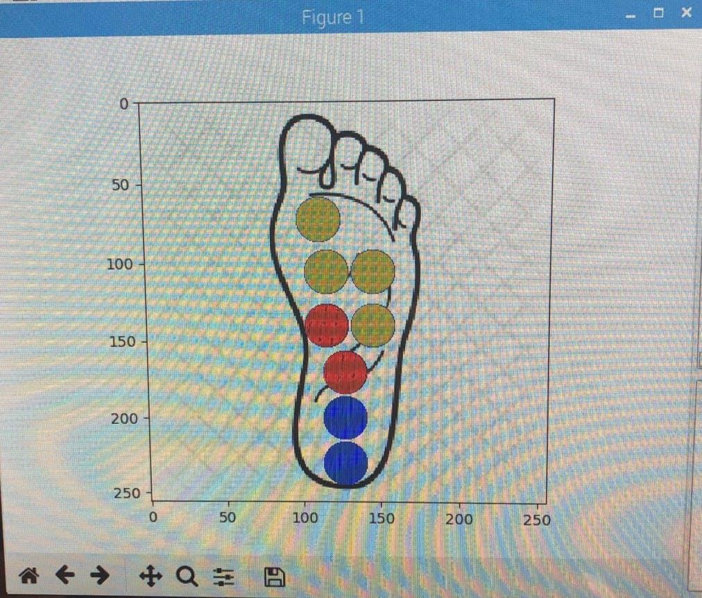 Smart Shoe Sensor - Hackster io