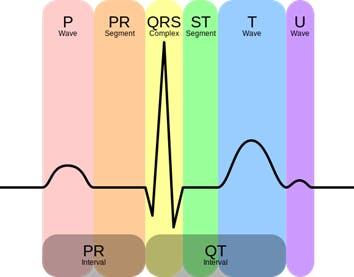 Figure 2. Heart Signal (ECG)