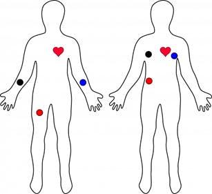 Figure 6. ECG Electrode Placement