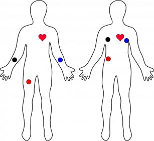 Figure 6. ECG Electrode Placement