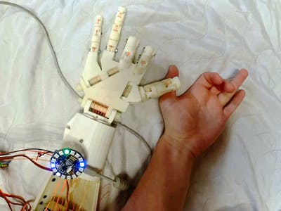 Robotic Hand Control Using EMG