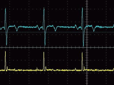 Digital Filter for R wave detection in ECG signal
