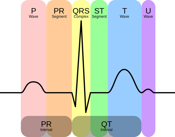 Intervals (picture from WIKIPEDIA - https://en.wikipedia.org/wiki/Electrocardiography)