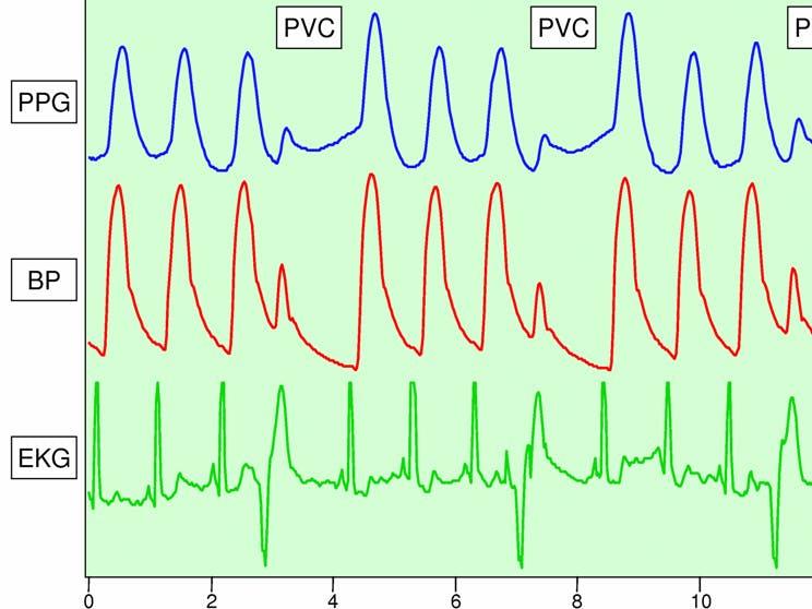 Pvc detectionusing pgg